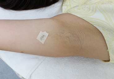 coolite pro medyczny laser diodowy salon kosmetyczny